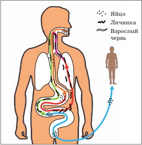 паразиты в моче человека